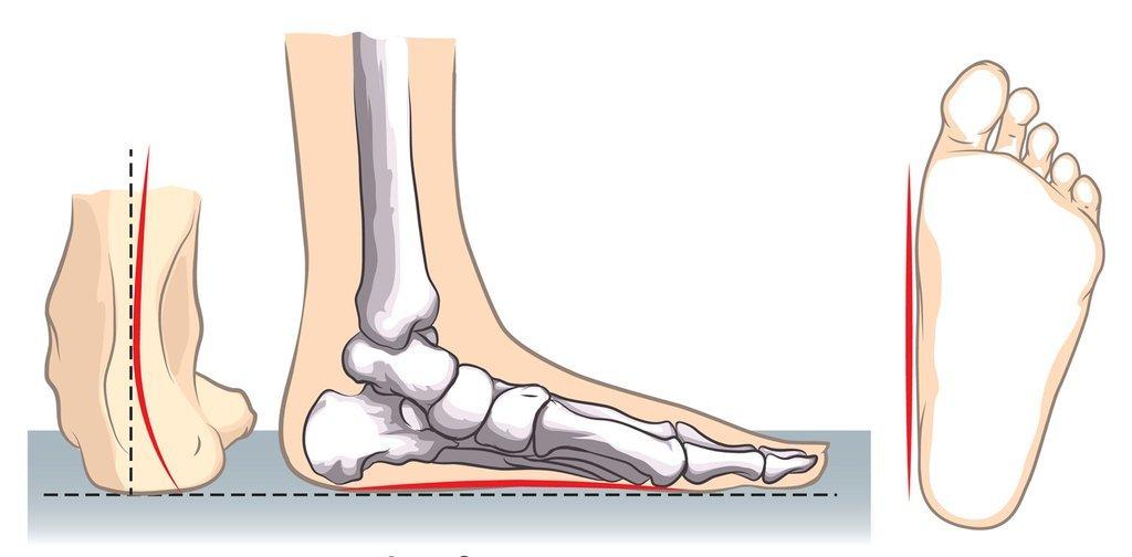 diagram showing flat feet